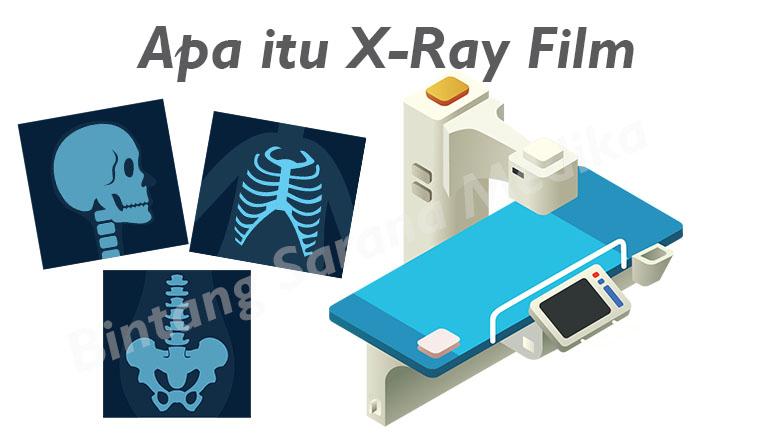 Apa Itu X-Ray Film
