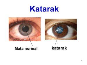 Illustrasi Katarak