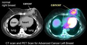 CT dan PET Scan