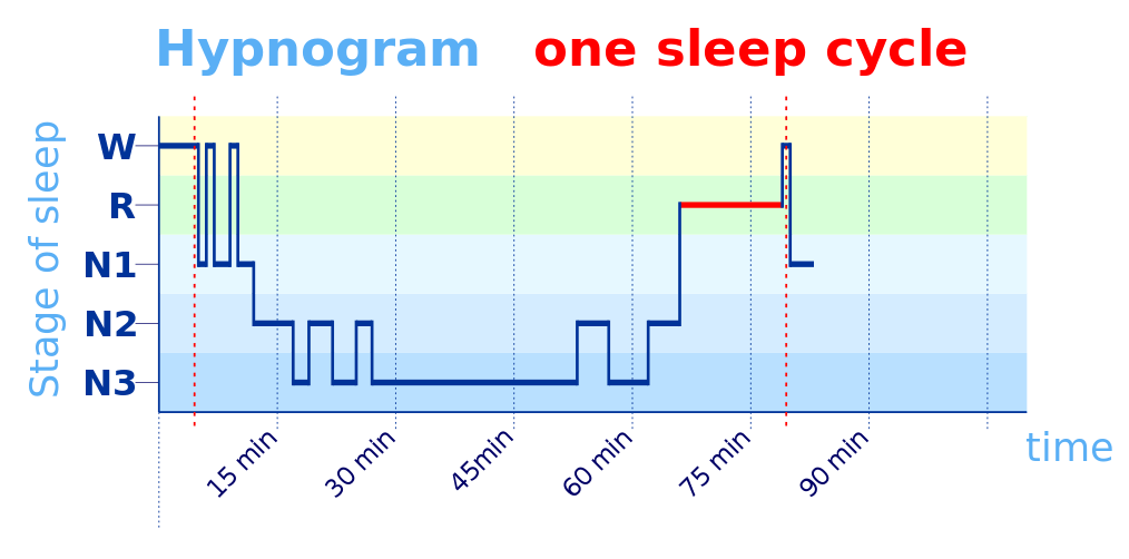 hypnogram-sleep-cycle