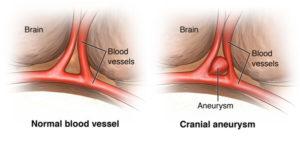 Cerebral-aneurysm