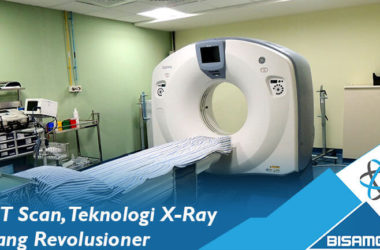 CT Scan, Teknologi X-Ray yang Revolusioner
