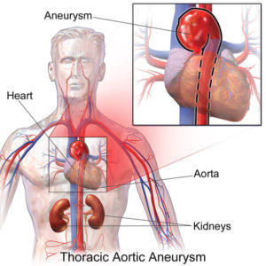 thoratic-aortic-aneurysm